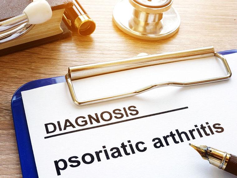 Kaj je artritis